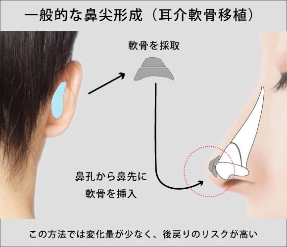 一般的な鼻尖形成(耳介軟骨移植)