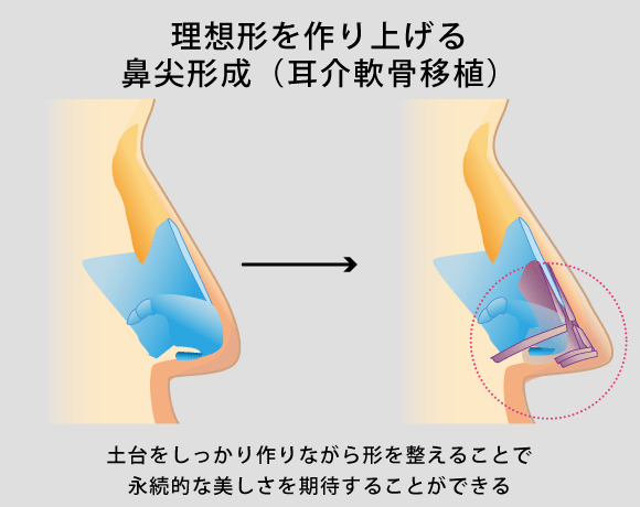 理想形を作り上げる鼻尖形成(耳介軟骨移植)