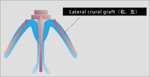 Lateral crural graft(右、左),長尾真治, 鼻整形.com, クローズド法, 長尾真治が配信する整形情報
