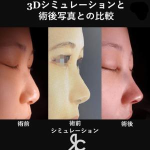 3Dシミュレーションと術後写真との比較