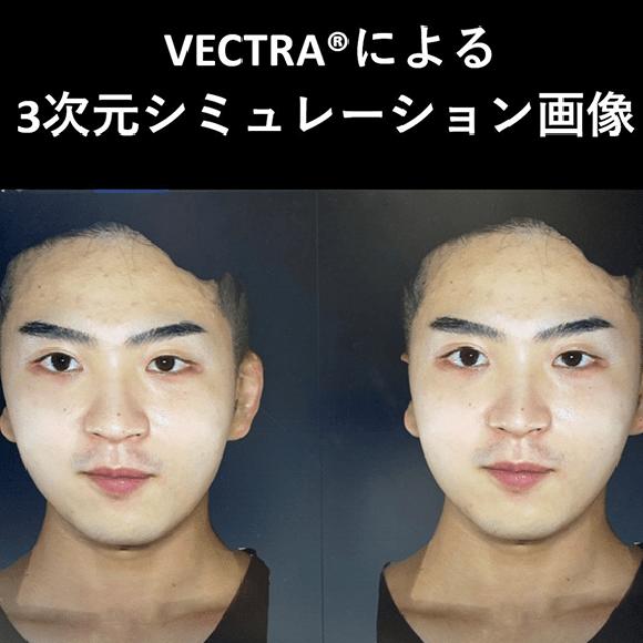 3次元シミュレーション画像 VECTRA ベクトラ