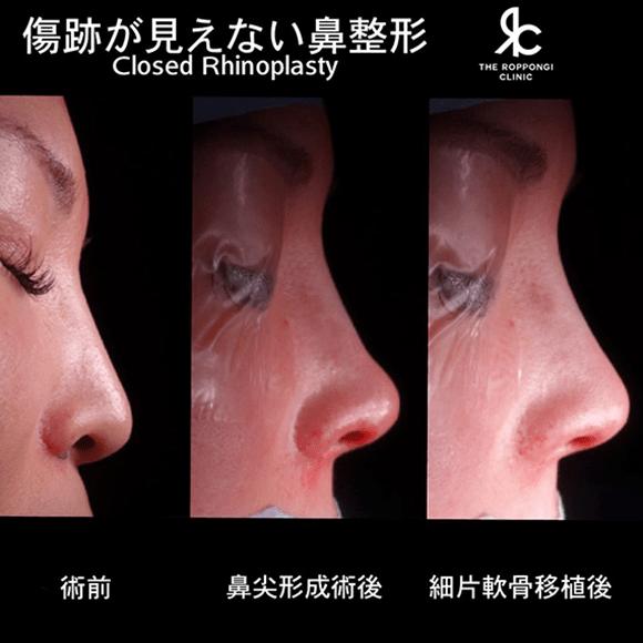 細片軟骨グルーグラフト移植を鼻尖形成術に併用