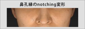 鼻孔縁のnotching変形,長尾真治, 鼻整形.com, クローズド法, 長尾真治が配信する整形情報
