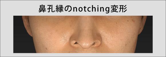 鼻孔縁のnotching変形